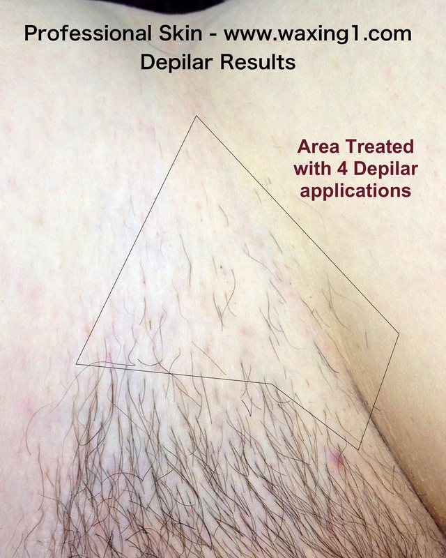 Depilar Permanent Hair Reduction Proskin Brazilian